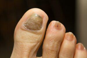 Thick toenails