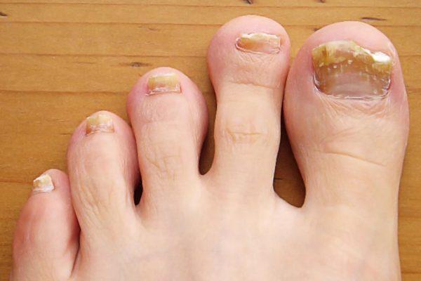 thick nails
